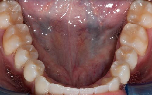 7-invisalign-after-500x315